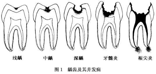 牙齿龋坏程度