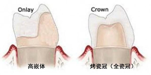 高嵌体和牙冠