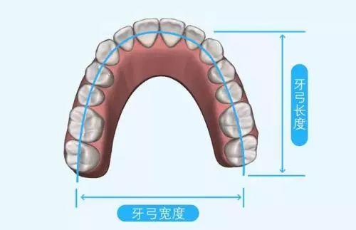 牙齿的牙弓是什么