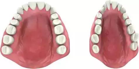 正常牙弓和偏窄的牙弓