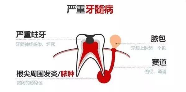牙根长脓包