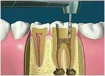 钻牙打开牙髓
