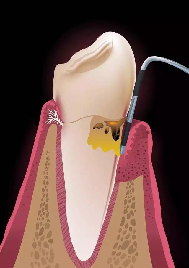 探诊牙周深度