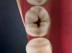蛀牙补牙要多长时间?1个小时能做完吗