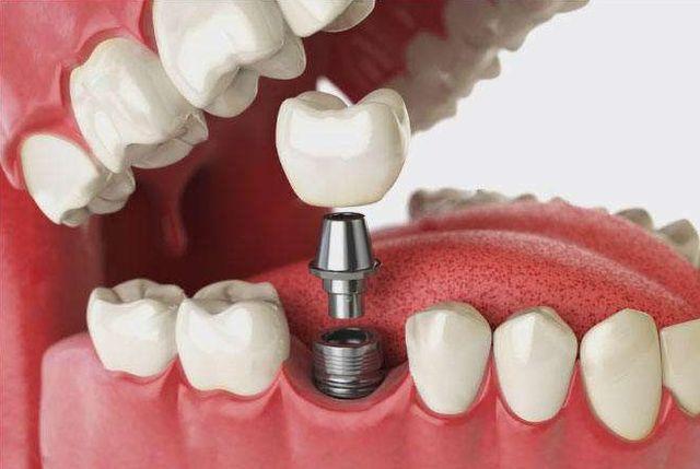 缺一颗牙种一颗牙的情况