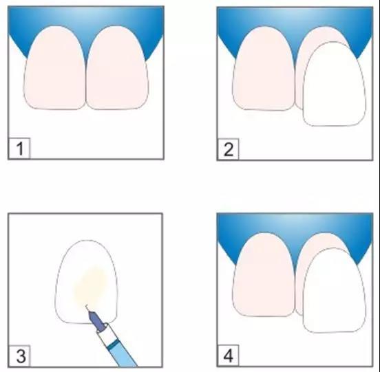 牙齿贴片操作方式