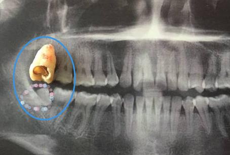 拍片查看牙齿情况