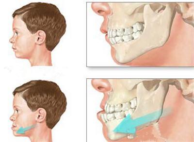正常牙齿和地包天的牙齿