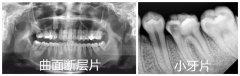 牙齿拍曲面断层片多少钱?几个月前拍过需要重新拍吗?
