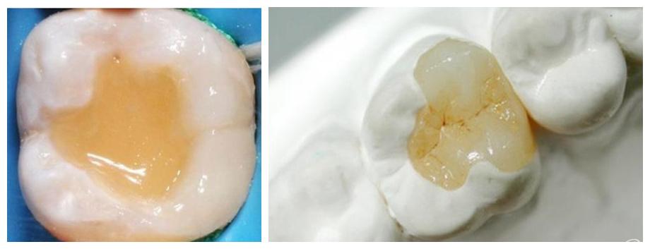 树脂补牙和嵌体补牙