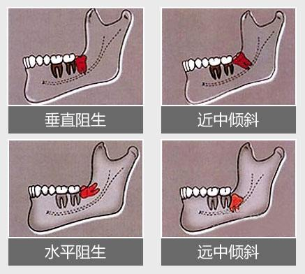 智齿的不同位置