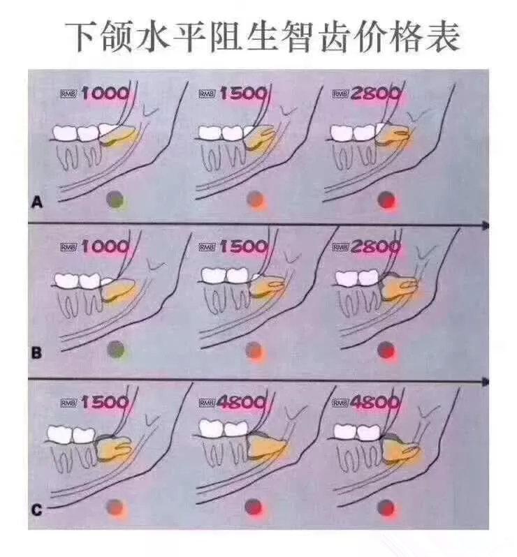 网传下颌阻生智齿拔牙价格参考表