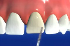 深圳牙齿贴面的价格是多少?是包干价吗