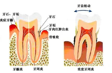 牙龈炎与牙周炎