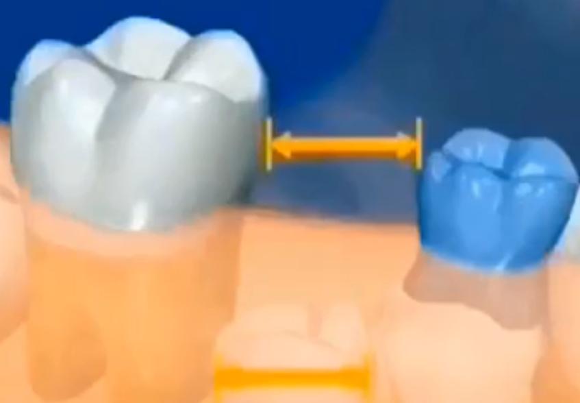 乳牙拔除后