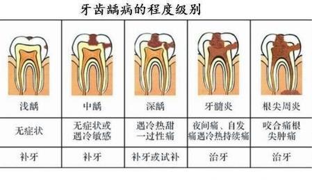 虫牙不同程度和症状表现
