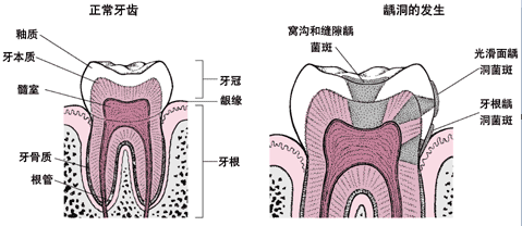 正常的牙齿和虫牙