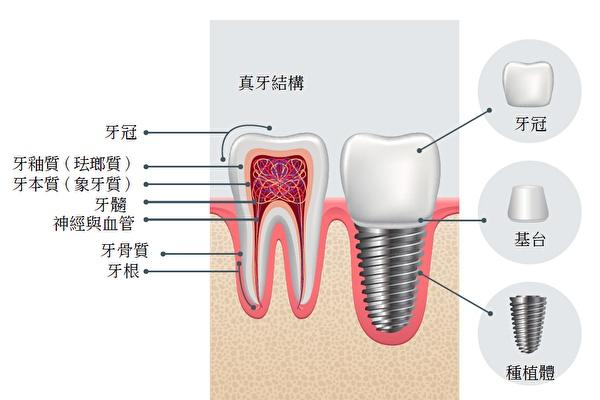 真牙牙齿结构和种植牙牙齿结构