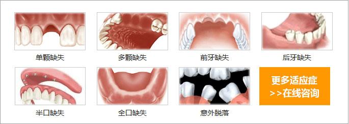 牙齿缺失情况