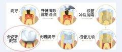 深圳罗湖做根管治疗多少钱