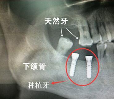 真牙和种植牙在牙片中的体现