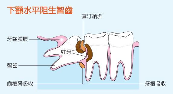 下颌智齿阻生危害