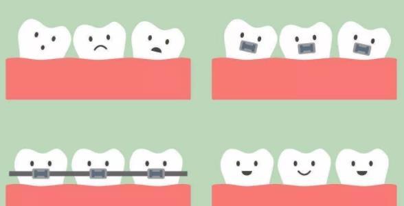 牙齿矫正前后变化