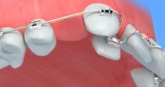 拔牙正畸后牙缝收不完怎么办?