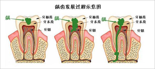 龋齿发展过程示意图