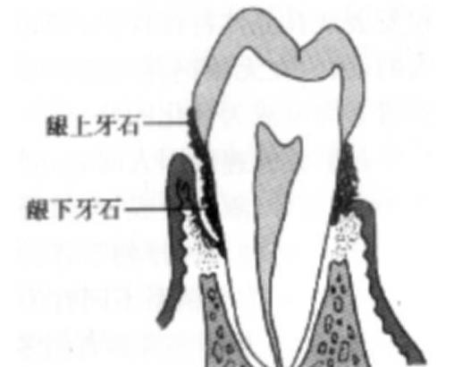 牙龈上和牙龈下的牙结石