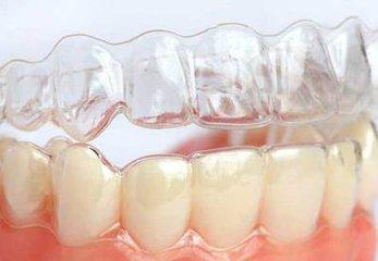 隐形无托槽透明牙套