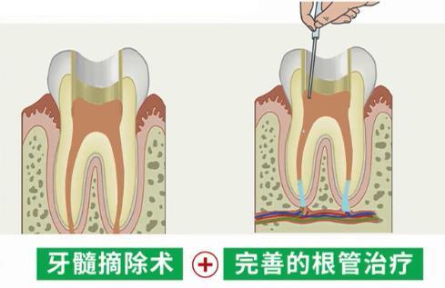 牙髓摘除和根管治疗