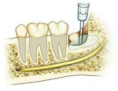 牙齿很突,拔智齿能改善龅牙吗