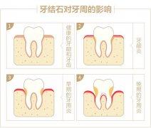 牙周袋是什么样的,自己能发现吗