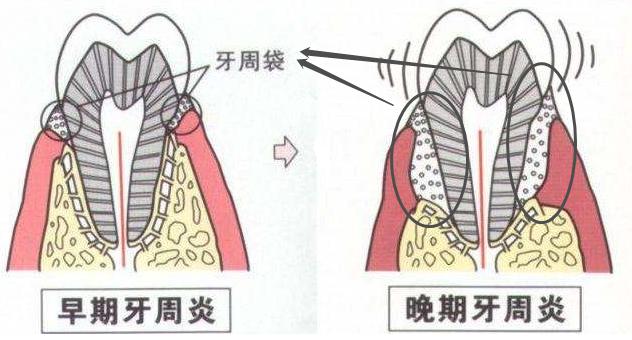 牙周袋和牙周炎