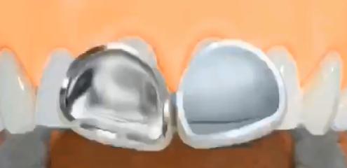 金属烤瓷牙和全瓷牙