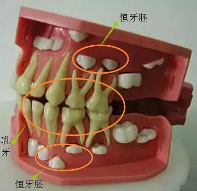 换牙时期乳牙和恒牙的关系示意图