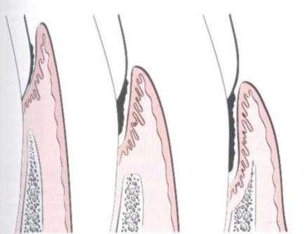牙龈下牙结石