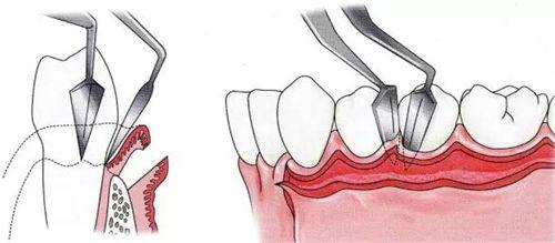 牙龈翻瓣示意图
