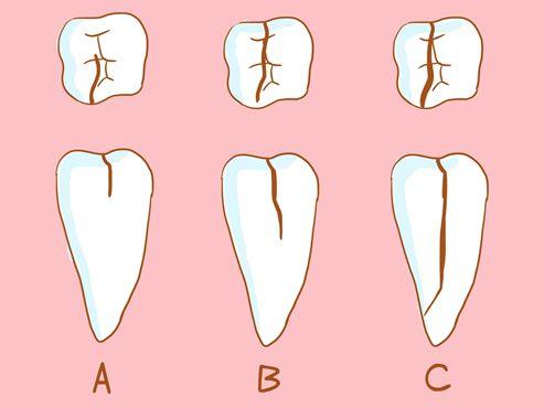 牙隐裂不同的程度