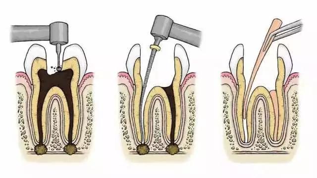 根管治疗把牙齿腐烂组织去除干净