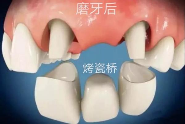 牙齿缺失后做烤瓷桥