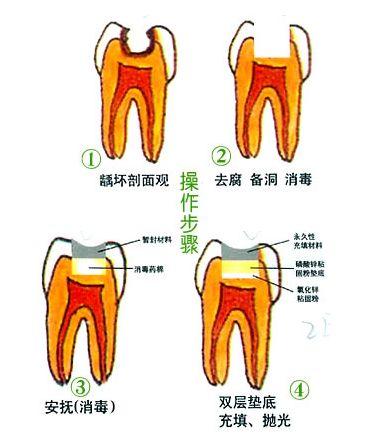 补牙垫底安抚治疗