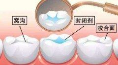 儿童已经有了蛀牙,还能做窝沟封闭吗?