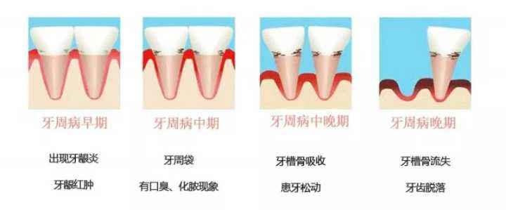 牙周病的发展