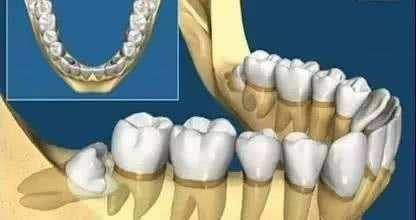 正畸前有智齿可能需要拔智齿