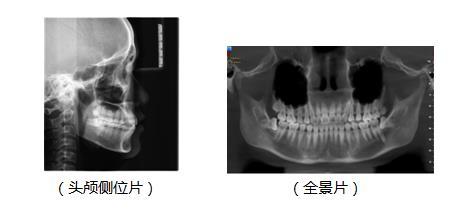 拍片分析牙齿畸形情况