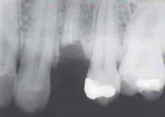 去医院拔除几个牙齿残根多少钱