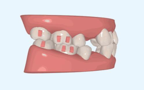牙齿拥挤常规拔牙
