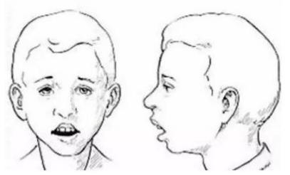 口呼吸造成龅牙